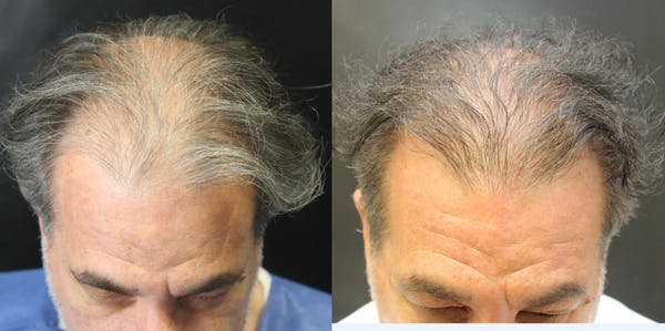 Hair Transplant Gallery - Patient 54187631 - Image 1