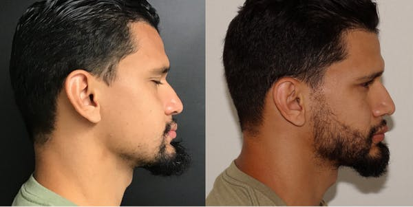 Hair Transplant Gallery - Patient 54187632 - Image 2