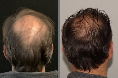Hair Transplant Gallery - Patient 54187633 - Image 1