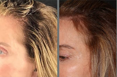 Hair Transplant Gallery - Patient 54187634 - Image 1