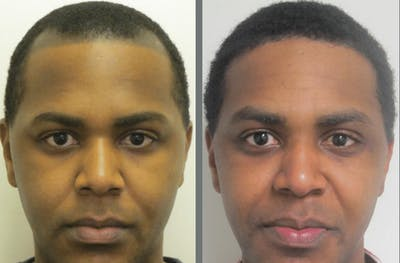 Hair Transplant Gallery - Patient 54187635 - Image 1