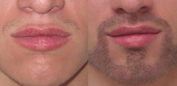 Hair Transplant Gallery - Patient 54187636 - Image 1