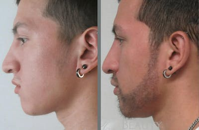 Hair Transplant Gallery - Patient 54187637 - Image 1