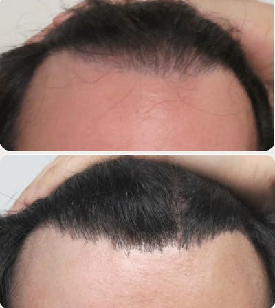 Hair Transplant Gallery - Patient 54187638 - Image 1