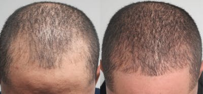 Hair Transplant Gallery - Patient 54187639 - Image 1