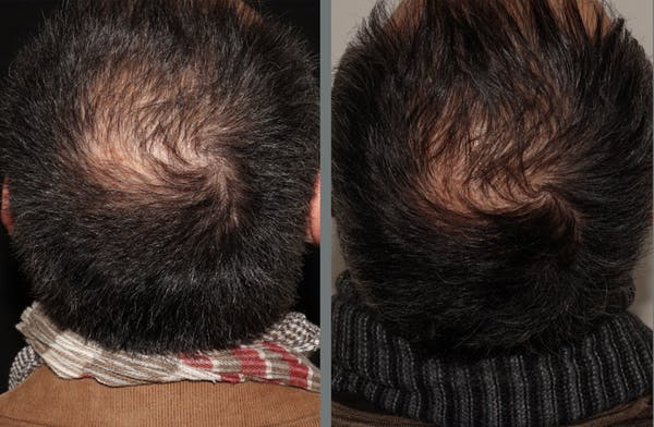 Hair Transplant Gallery - Patient 54187640 - Image 1