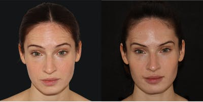 Injectables Gallery - Patient 54187820 - Image 1