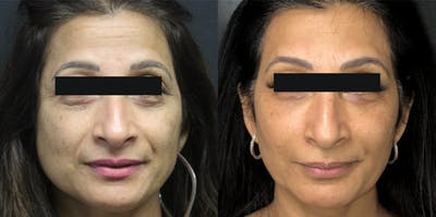 Injectables Gallery - Patient 54187821 - Image 1