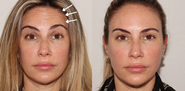 Injectables Gallery - Patient 54187822 - Image 1