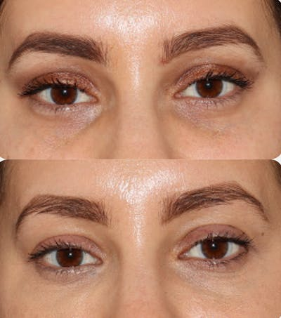 Injectables Gallery - Patient 54187824 - Image 1