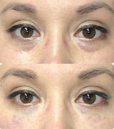 Injectables Gallery - Patient 54187826 - Image 1