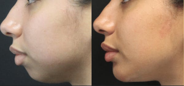 Chin Augmentation Gallery - Patient 54195608 - Image 1