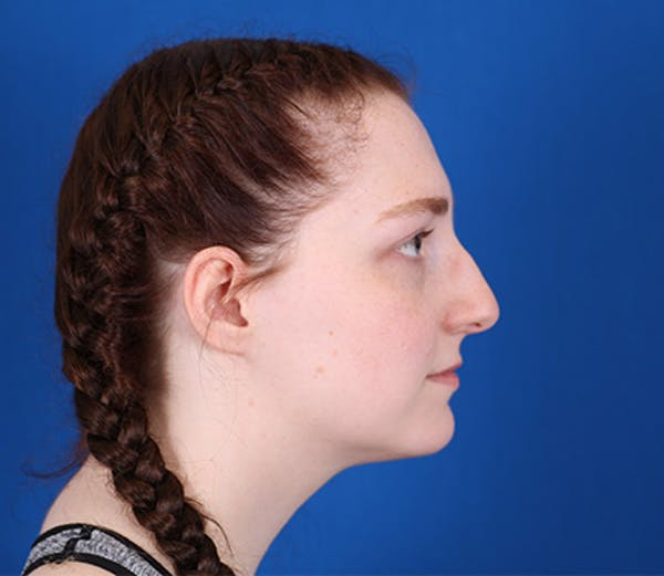 Rhinoplasty Gallery - Patient 24798207 - Image 1