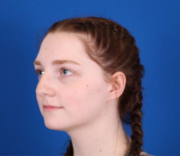 Rhinoplasty Gallery - Patient 24798207 - Image 3