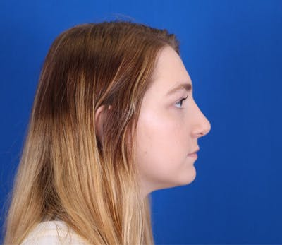 Rhinoplasty Gallery - Patient 24798207 - Image 2