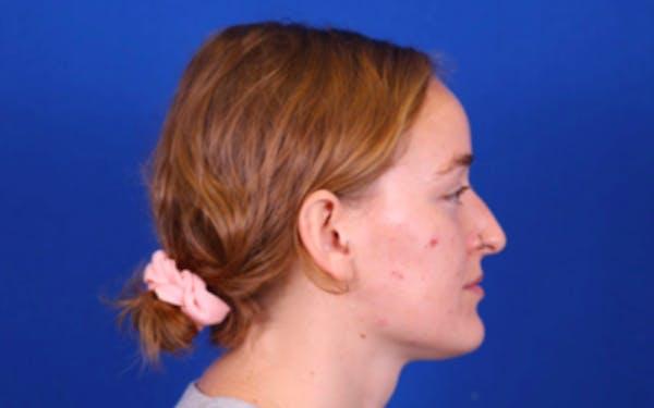Rhinoplasty Gallery - Patient 24798208 - Image 3