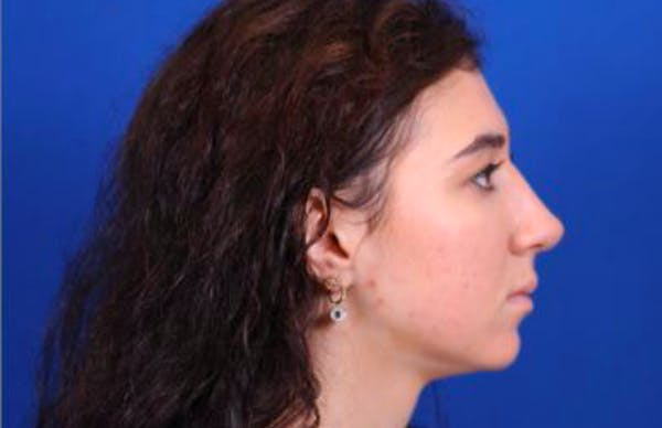 Rhinoplasty Gallery - Patient 24798209 - Image 4