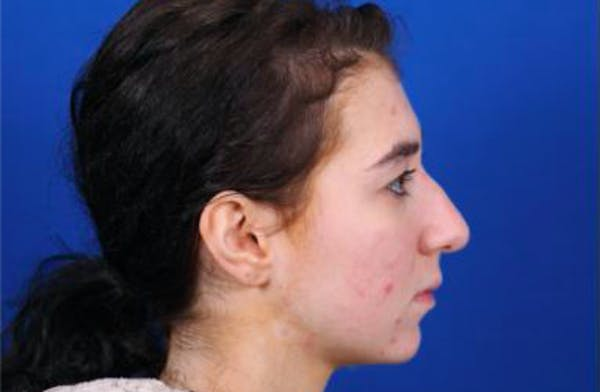 Rhinoplasty Gallery - Patient 24798209 - Image 3