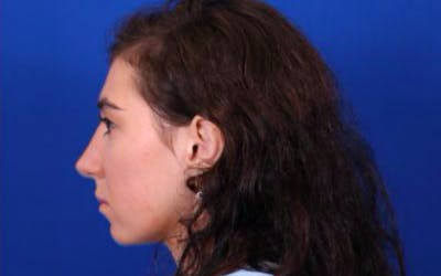 Rhinoplasty Gallery - Patient 24798209 - Image 8
