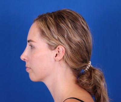 Rhinoplasty Gallery - Patient 24798210 - Image 6