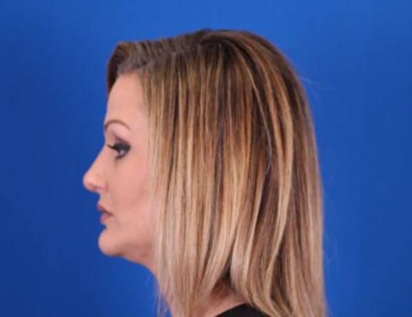 Rhinoplasty Gallery - Patient 24798341 - Image 6