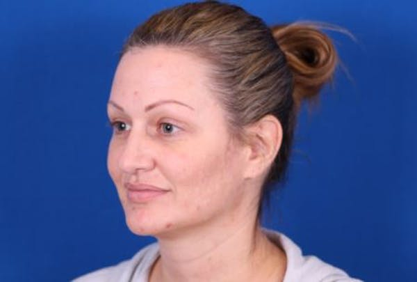 Rhinoplasty Gallery - Patient 24798341 - Image 3