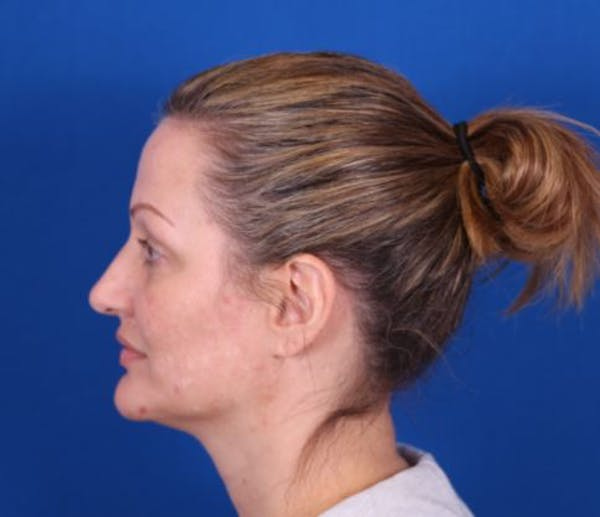 Rhinoplasty Gallery - Patient 24798341 - Image 5