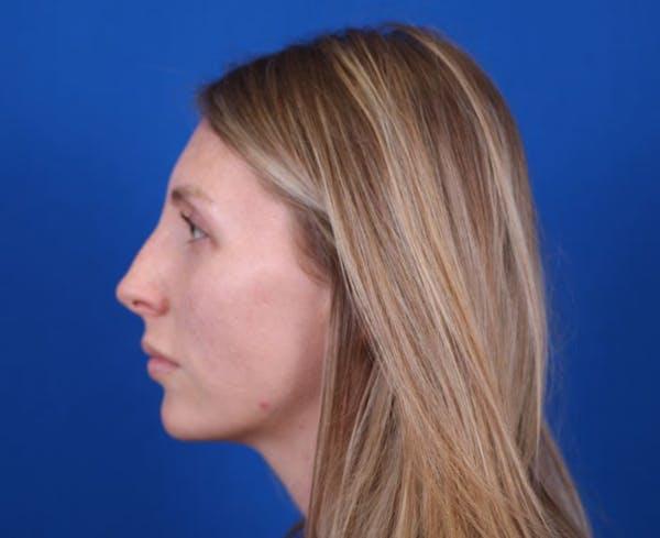 Rhinoplasty Gallery - Patient 24799486 - Image 5