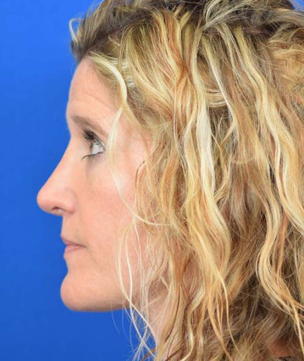 Rhinoplasty Gallery - Patient 24799487 - Image 2