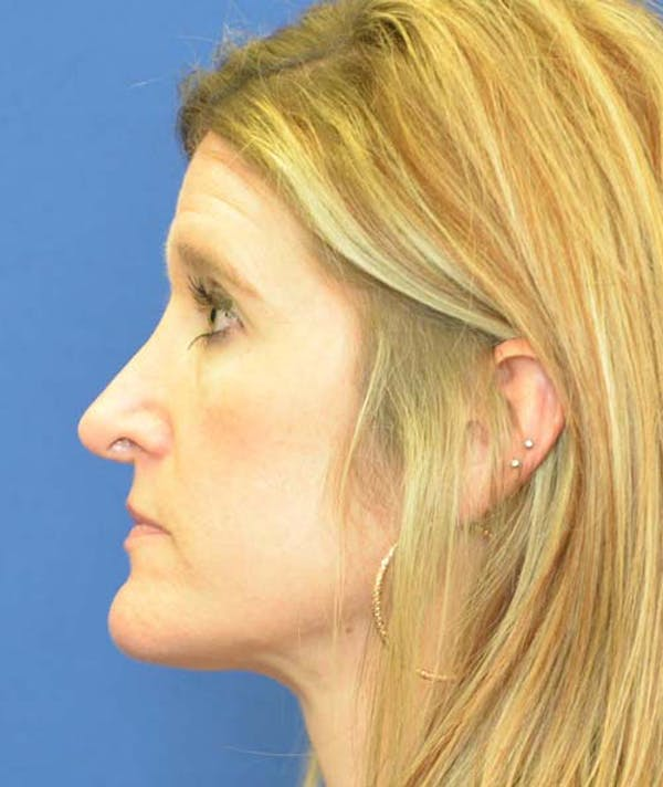 Rhinoplasty Gallery - Patient 24799487 - Image 1