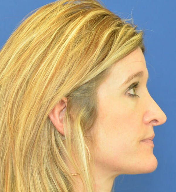 Rhinoplasty Gallery - Patient 24799487 - Image 3