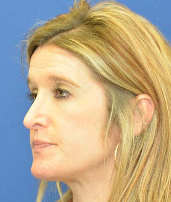 Rhinoplasty Gallery - Patient 24799487 - Image 5