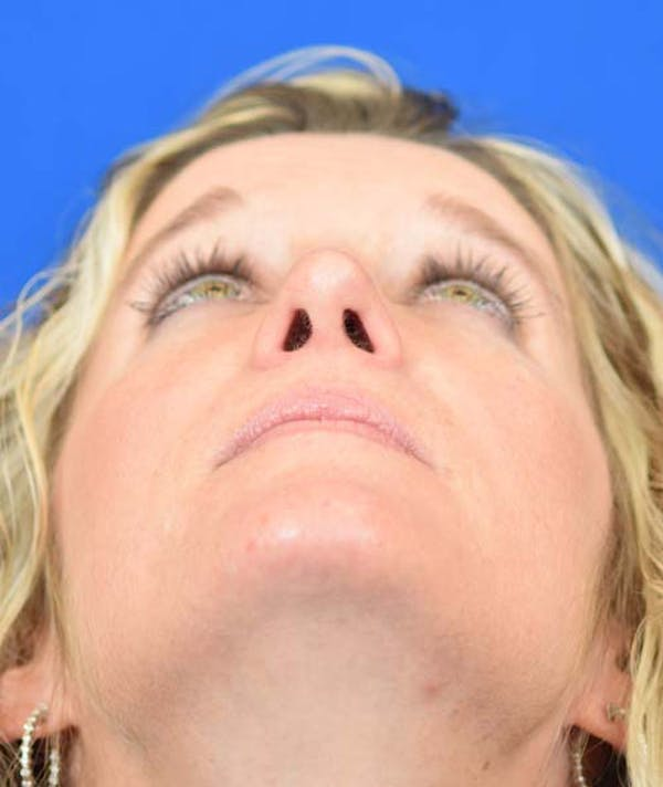 Rhinoplasty Gallery - Patient 24799487 - Image 8