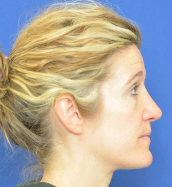 Rhinoplasty Gallery - Patient 24799487 - Image 4