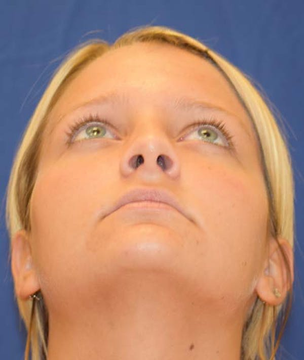 Rhinoplasty Gallery - Patient 24799488 - Image 6