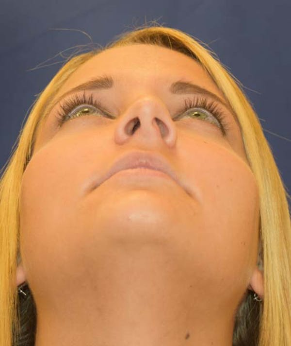 Rhinoplasty Gallery - Patient 24799488 - Image 5