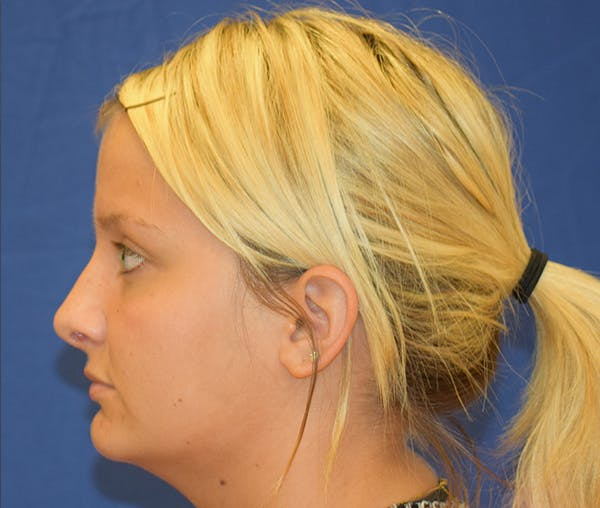 Rhinoplasty Gallery - Patient 24799488 - Image 4