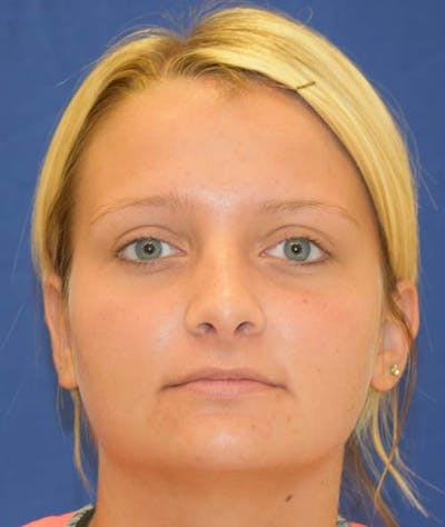 Rhinoplasty Gallery - Patient 24799488 - Image 2