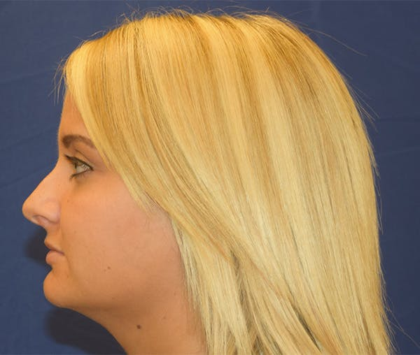 Rhinoplasty Gallery - Patient 24799488 - Image 3