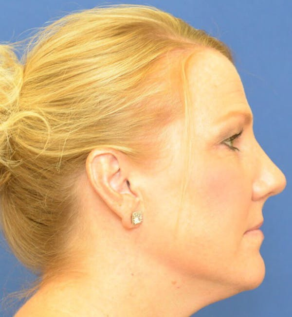 Rhinoplasty Gallery - Patient 24799489 - Image 4