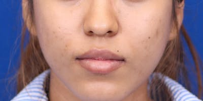 Rhinoplasty Gallery - Patient 24799686 - Image 1