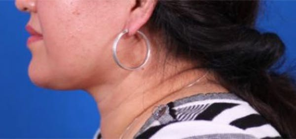 Neck Contouring Gallery - Patient 24801469 - Image 2