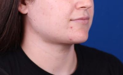 Neck Contouring Gallery - Patient 24801470 - Image 4