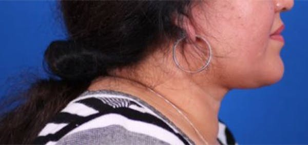Neck Contouring Gallery - Patient 24801469 - Image 4