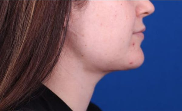 Neck Contouring Gallery - Patient 24801470 - Image 2