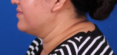 Neck Contouring Gallery - Patient 24801469 - Image 1