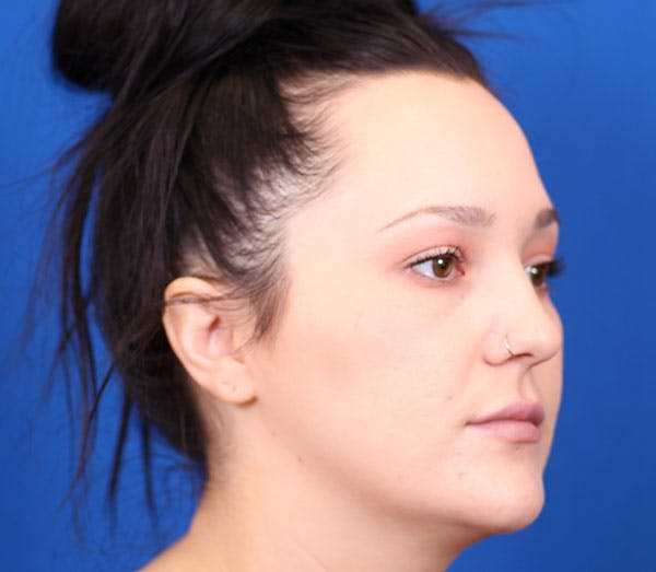 Neck Contouring Gallery - Patient 24801471 - Image 3