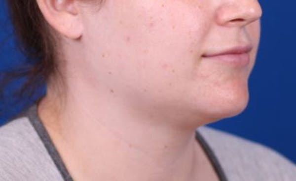 Neck Contouring Gallery - Patient 24801470 - Image 3