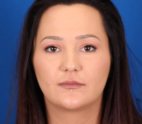 Neck Contouring Gallery - Patient 24801471 - Image 2