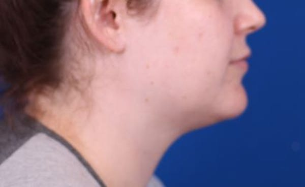 Neck Contouring Gallery - Patient 24801470 - Image 1